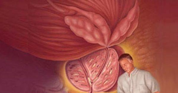 Prostatitis és kvass