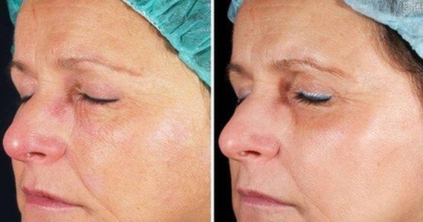 Laser Skin Tightening Eliminate Various Skin Imperfections Laser Skin Tightening Skin Resurfacing Fractional Laser