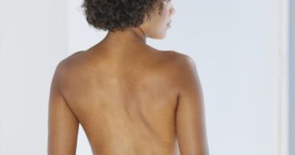 Exercise After Latissimus Dorsi Flap Reconstruction ...