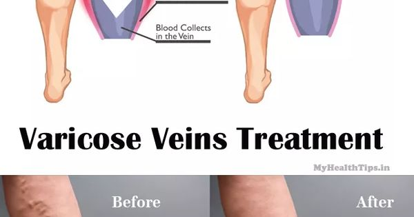 how to get rid of varicose veins naturally book