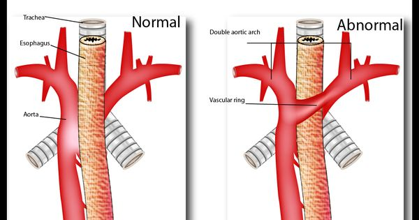 Vascular Ring Was My Heart Defect I Was Born With Heart