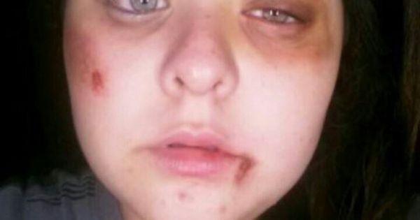 Bruses and black eye sfx makeup   Bruse and injury makeup ...
