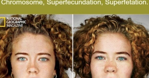 The identical twins who really are an exact mirror image