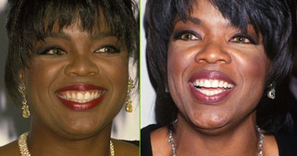 Oprah Winfrey teeth before after cosmetic dentistry. 22 best ideas about Smile Makeovers on Pinterest   Cosmetic