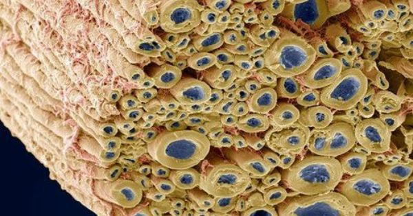 Ever wondered what a nerve looks like under extreme magnification? Here it