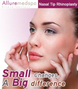 Nose Tip Rhinoplasty Is Also Known As Nasal Tip Rhinoplasty Is Most Common Types Of Rhinoplasty That Design Rhinoplasty Cost Rhinoplasty Rhinoplasty Nose Jobs