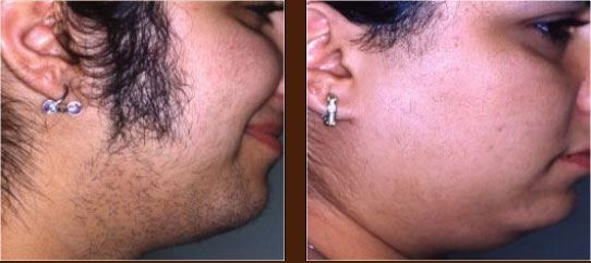 Laser Hair Removal Before After Images Facial Hair Permanently