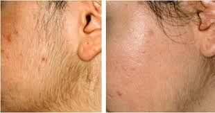 Before And After Laser Hair Removal From Face Laser Hair Removal Laser Hair Removal Results Ipl Hair Removal