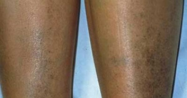 how to get rid of hyperpigmentation on legs