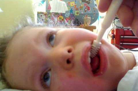 Beckman Oral Therapy Part 2 Gum Massaging T21 Speech