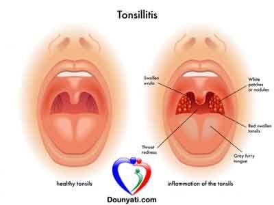 دنيتي علاج التهاب اللوزتين بالاعشاب Schmerz Gesundheit Mandeln