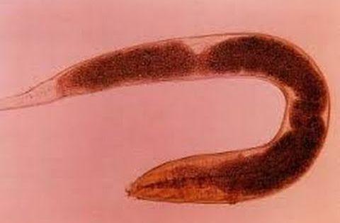 Enterobius vermicularis tojás a székletben