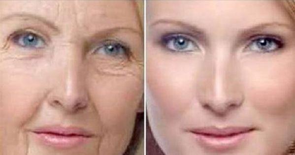 Do que branquear lugares de pigmentary em uns remédios de gente de cara