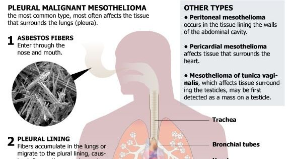 Mesothelioma Symptoms and Treatments  Lung cancer symptoms, Strength and Types of cancers