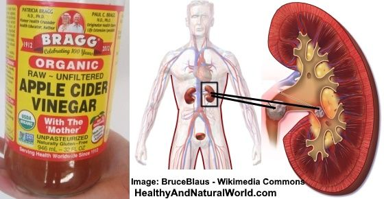 How to Dissolve Kidney Stones With Apple Cider Vinegar | Apple cider vinegar  benefits, Apple cider vinegar remedies, Apple cider