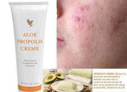 Crema De Aloe Y Propoleo Uno De Nuestros Productos Más Populares Para El Cuidado De La Piel Aloe Prop Propolis Cream Moisturizer Cream Forever Living Products