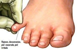 Pie De Atleta Tratamiento Infección Por Hongos Remedios Para Hongos En Los Pies Remedio Hongos Pies
