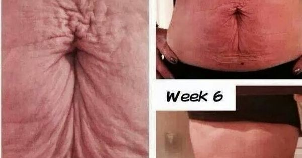 Have Loose Skin After Weight Loss Or Having Children