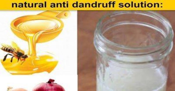 Onion Juice for Hair Growth and Reversing Grey - Green Yatra Blog ...