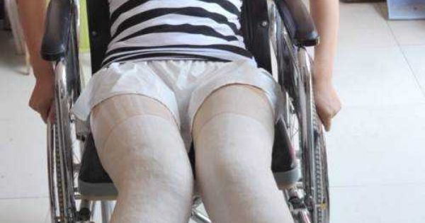 Knock knees casts pinterest leg cast and llc cast