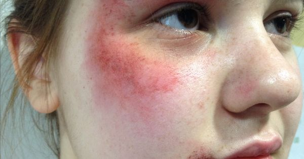 Theatrical makeup - experiments with SFX face bruising ...
