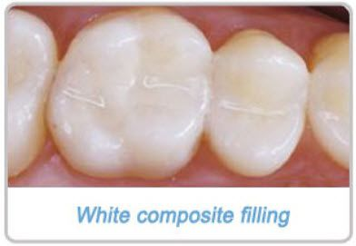 Wisdom Teeth Surgery Recovery Tips Complications Di Hickman Wisdom Teeth Recovery Wisdom Teeth Teeth Surgery