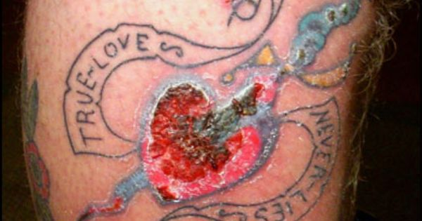 Bad tattoo infections images of tattoo gone bad bme for Badly infected tattoo