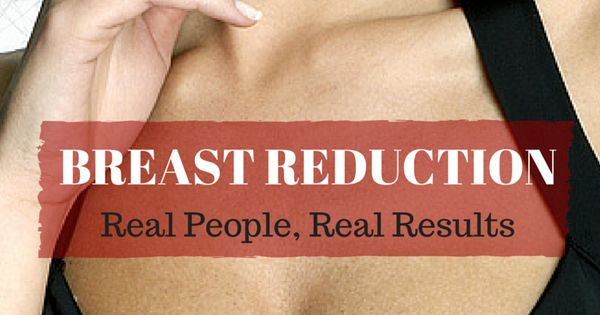 Breast reduction is the most effective treatment for back ...
