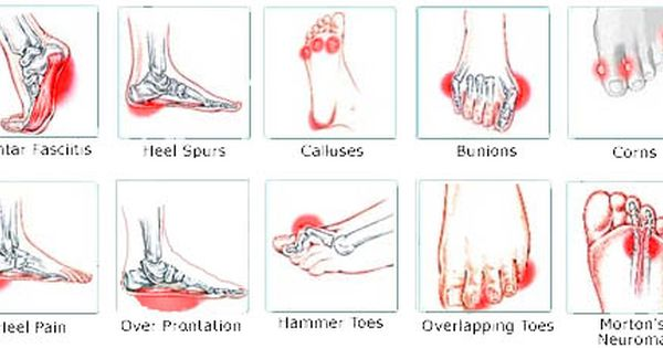 different type of foot pain archs pinterest foot back massage diagram