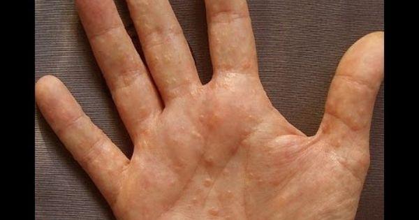 Atópiás dermatitisz | avantgardeutazas.hu
