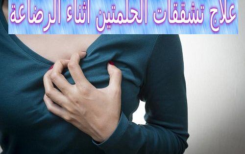 Pin On الرضاعة