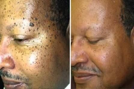 Before And After Mole Removal Skin Tags Home Remedies Skin Moles Moles On Face