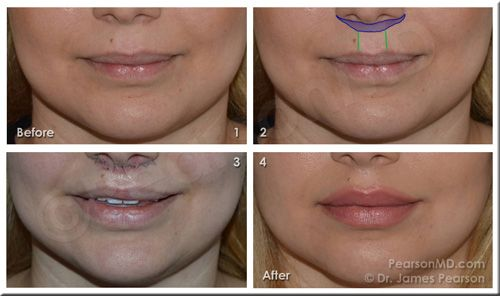 A Lip Lift Can Decrease The Relative Vertical Length Of The