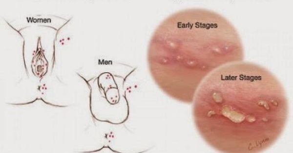 Stages of a Genital Herpes Outbreak - herpesmedication.org