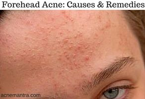 How To Get Rid Of Forehead Acne Acne Mantra Back Acne Treatment Forehead Acne Chest Acne
