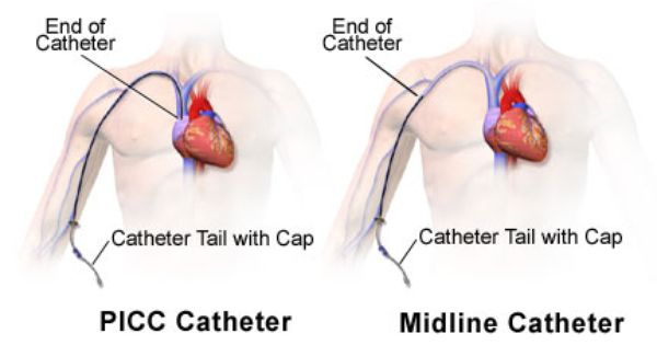 Picc Vs Midline Peripherally Inserted Central Catheters And Midline Catheters Care Catheter Nursing Cheat Oncology Nursing