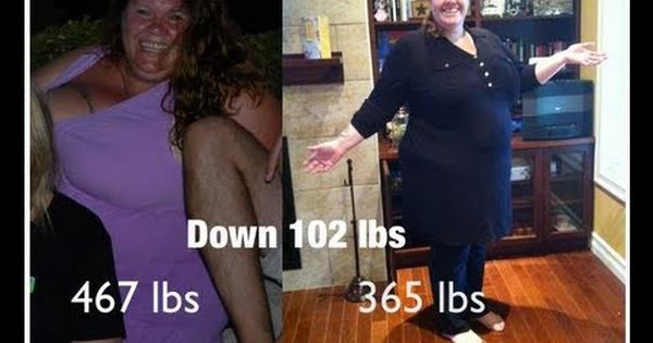 weight loss diet case study