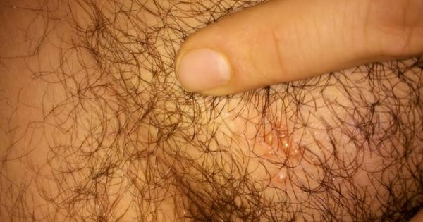 Pimples Around Male Genital Area Herpes Pimples On Pubic