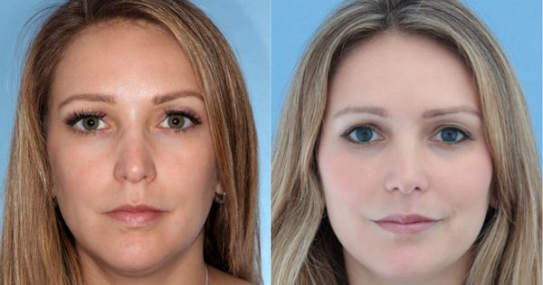Best Plastic Surgeon NY | In the Media