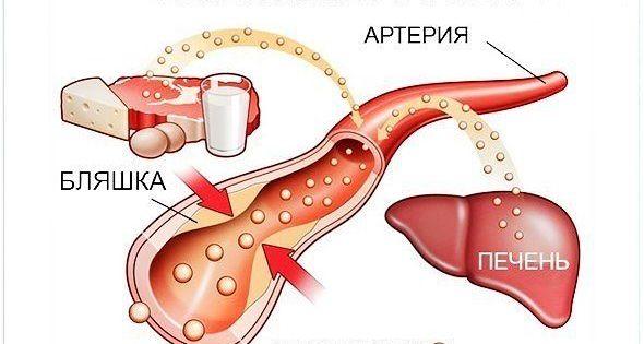 как понизить уровень холестерина народные средства