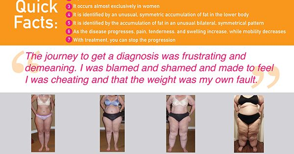 Lipedema Pictures Home About Me Treatment