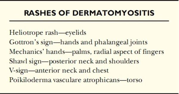 Rashes Of Dermatomyositis Hubby Has Just About All Of These