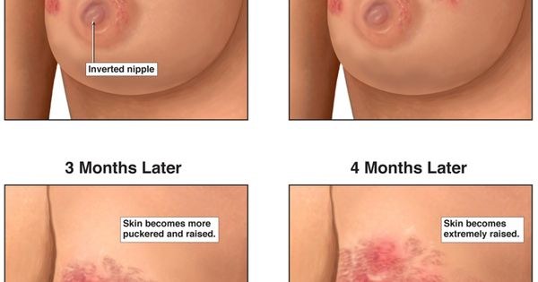 breast cancer findings government related to