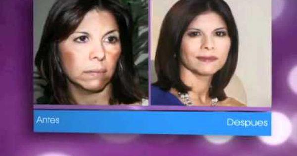 Tratamiento para quitar las manchas de la cara testimonios - Quitar manchas de la pared ...