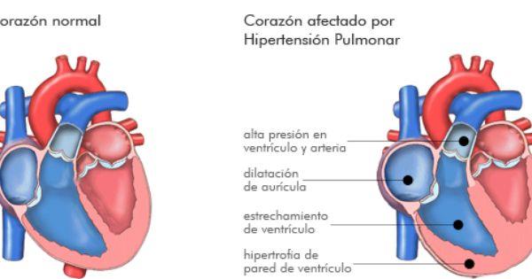 Asociación de hipertensión pulmonar uk