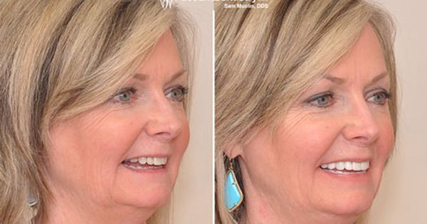 Pin On Faceliftdentistry