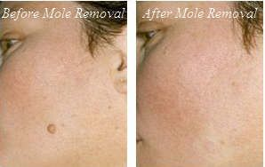 Before After Mole Removal At Laser Clinique Mole Removal Skin Tag Removal How To Remove