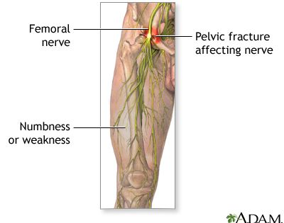femoral nerve damagethe femoral nerve is located in the leg and, Muscles