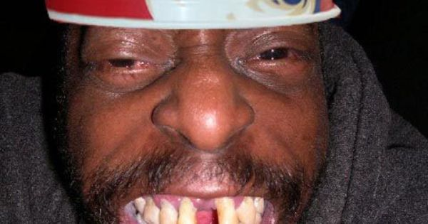 Kfc Black Person: Funny Pictures Of Ugly People