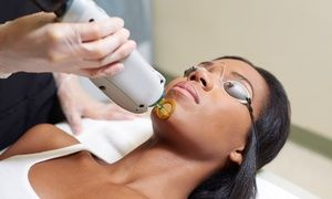 Six Laser Hair Removal Treatments For A Small Medium Or Large Area At Janelle Medispa Up To 92 Off Permanent Laser Hair Removal Hair Removal Laser Hair Removal Treatment